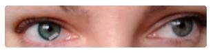 výsledek - aplikované kontaktní čočky